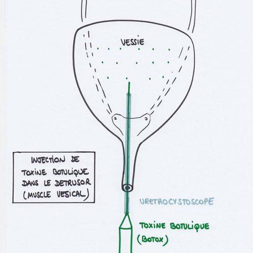 Injection de toxine boutulique dans le détrusor - Gynepole Montpellier
