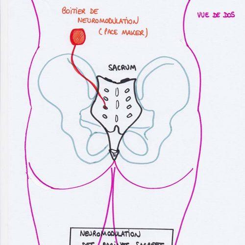 Neuromodulation des racines sacrées - Gynepole Montpellier